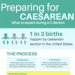 Preparing for a Caesarean Section: What to Expect