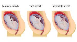 Three Types of Breech Presentations 1