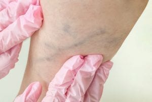 Treating Varicose Veins During Pregnancy