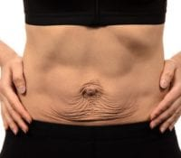 How to Identify and Treat Diastasis Recti 1