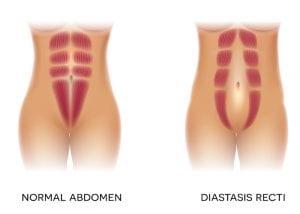 How to Identify and Treat Diastasis Recti