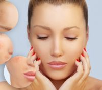 Melasma and Skin Health During Pregnancy