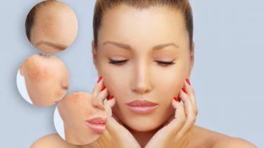 Melasma and Skin Health During Pregnancy