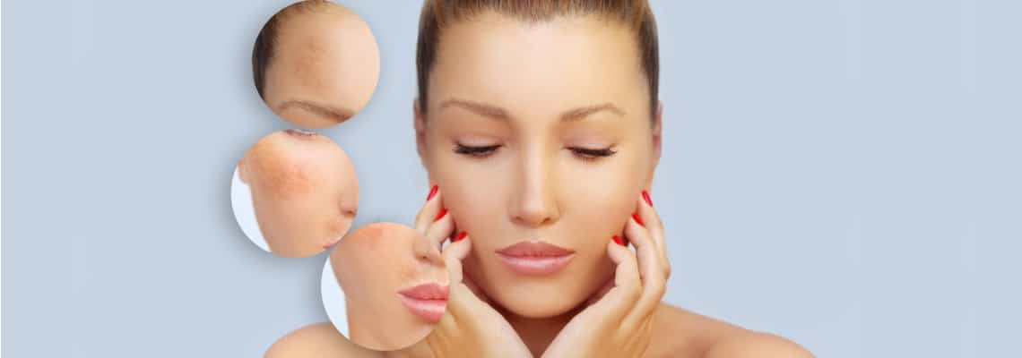 And Pregnancy Healthy During Melasma Health Skin -