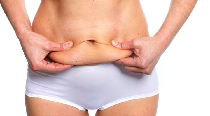 Tummy Tuck's After Pregnancy - All You Need to Know